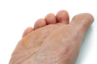Souderton Podiatrist | Souderton Athlete's Foot | PA | Indian Valley Podiatry Associates |