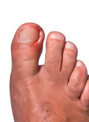Souderton Podiatrist | Souderton Ingrown Toenails | PA | Indian Valley Podiatry Associates |
