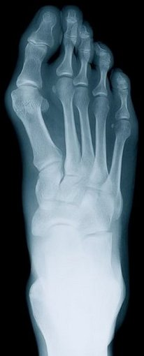 Souderton Podiatrist | Souderton Rheumatoid Arthritis | PA | Indian Valley Podiatry Associates |