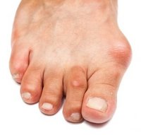Souderton Podiatrist | Souderton Bunions | PA | Indian Valley Podiatry Associates |